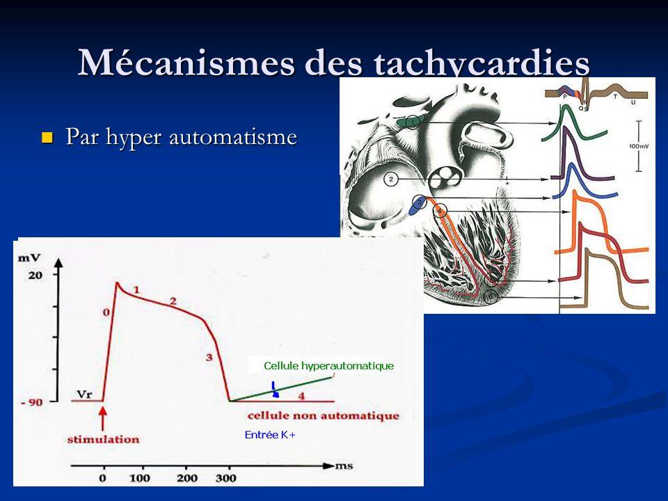 Mécanismes des tachycardies Par activité declanchée: Sortie de K+ Par activité declanchée: Sortie de K+