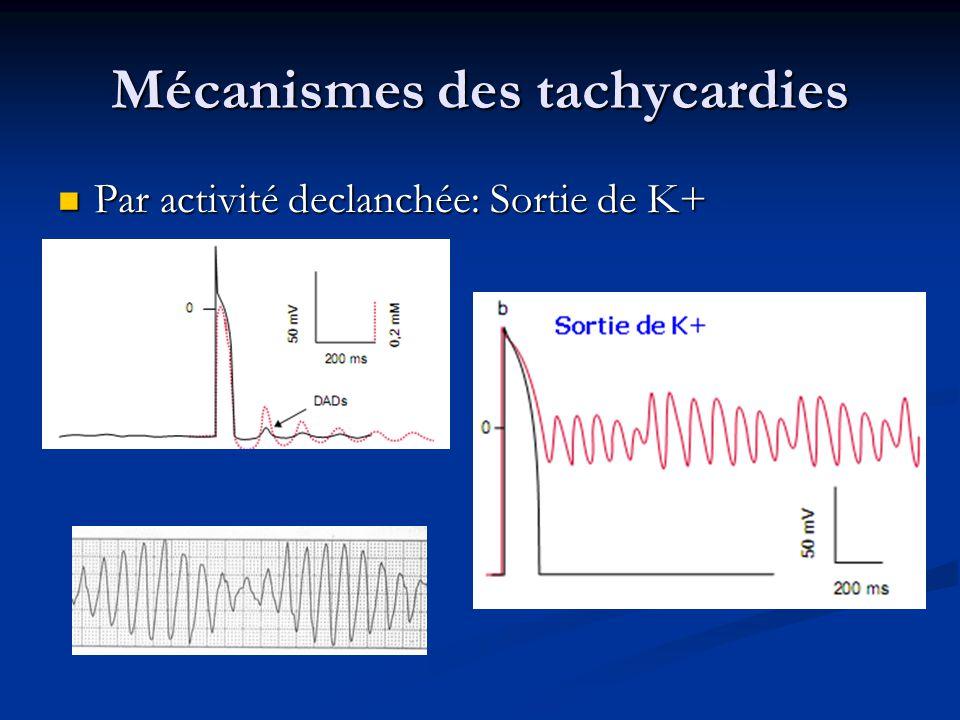 Mécanismes des tachycardies Par réentrée: 2 voies à périodes réfractaires différentes et une extrasystole: Par réentrée: 2 voies à périodes réfractaires différentes et une extrasystole: