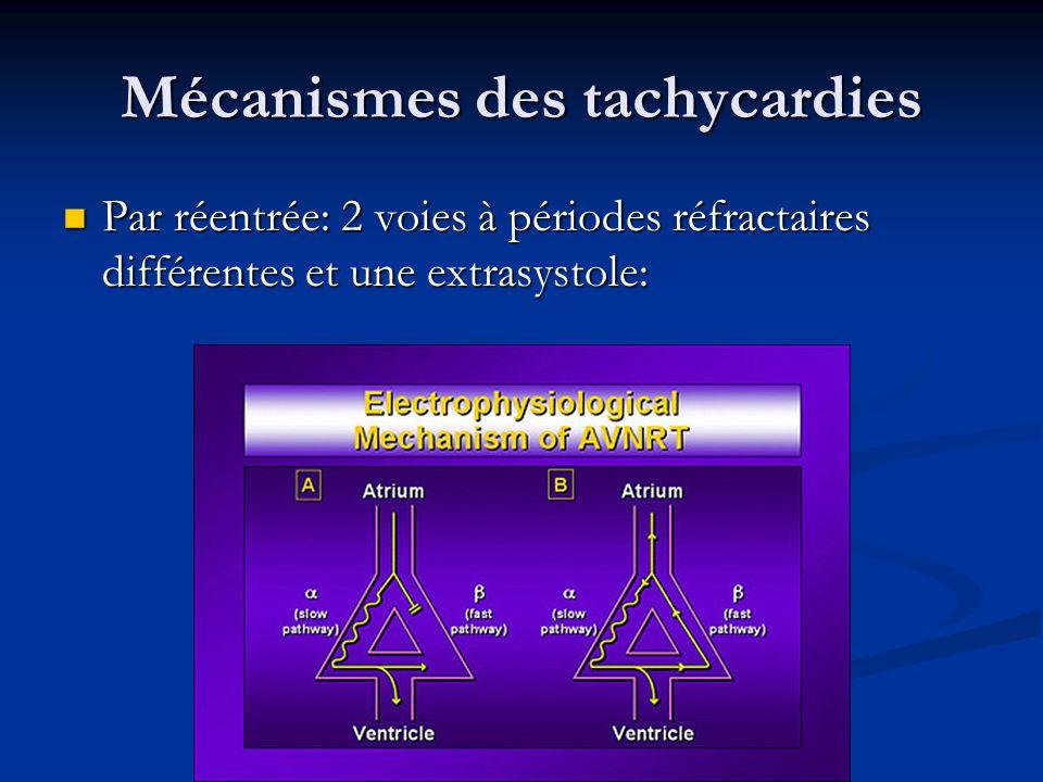 Classe IV Effet antiarythmique par réduction de la vitesse de conduction à travers le nœud AV Indications:.