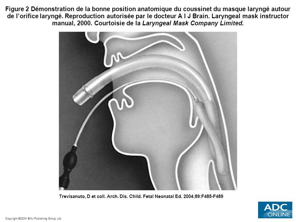 Copyright ©2004 BMJ Publishing Group Ltd. Trevisanuto, D et coll. Arch. Dis. Child. Fetal Neonatal Ed. 2004;89:F485-F489 Figure 2 Démonstration de la
