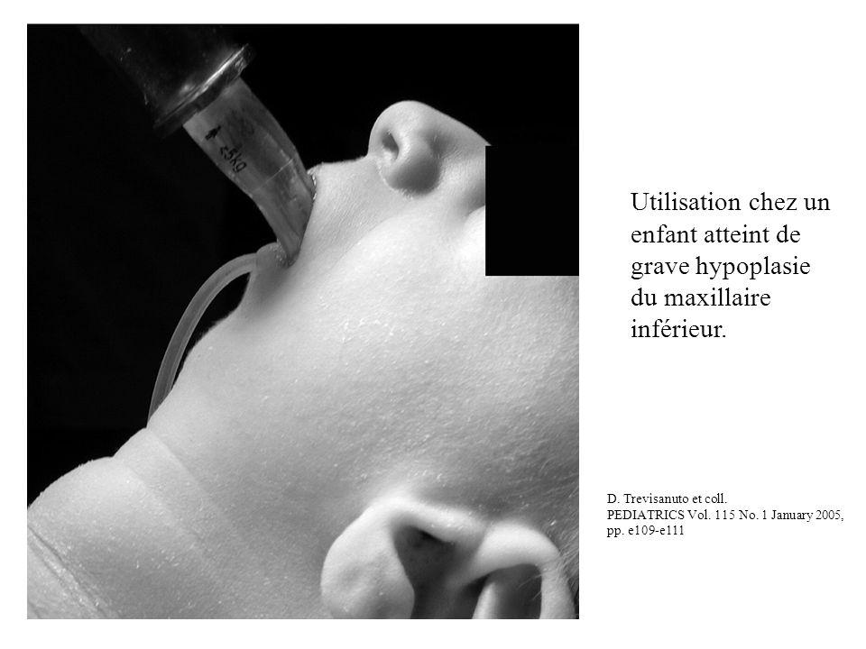Utilisation chez un enfant atteint de grave hypoplasie du maxillaire inférieur. D. Trevisanuto et coll. PEDIATRICS Vol. 115 No. 1 January 2005, pp. e1
