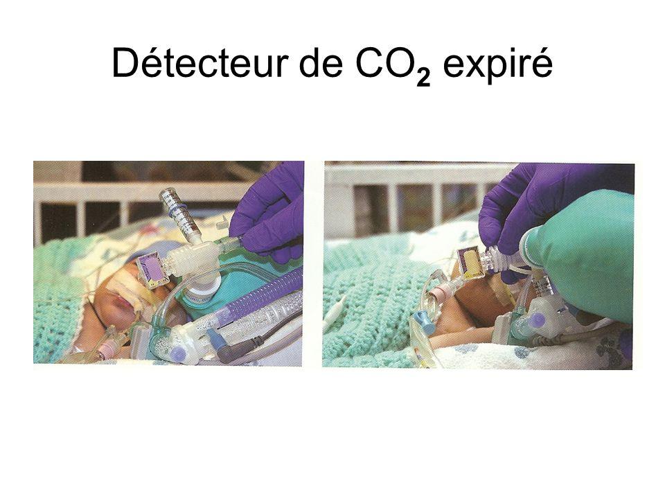 Sonde trachéale dans la trachée L'indicateur du détecteur de CO 2 passe par cycles du jaune (expiration) au mauve (inspiration).