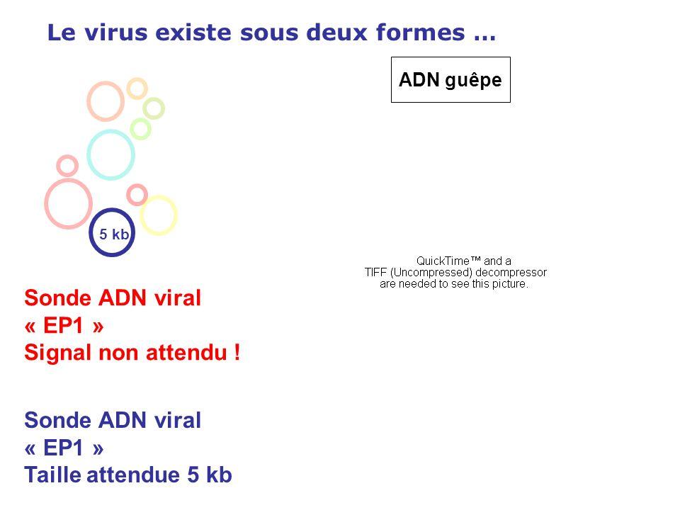 Le virus existe sous deux formes … Sonde ADN viral « EP1 » Signal non attendu ! 5 kb Sonde ADN viral « EP1 » Taille attendue 5 kb ADN guêpe
