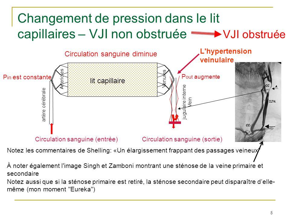 8 Changement de pression dans le lit capillaires – VJI non obstruée VJI obstruée P out augmente Circulation sanguine diminue P in est constante lit ca