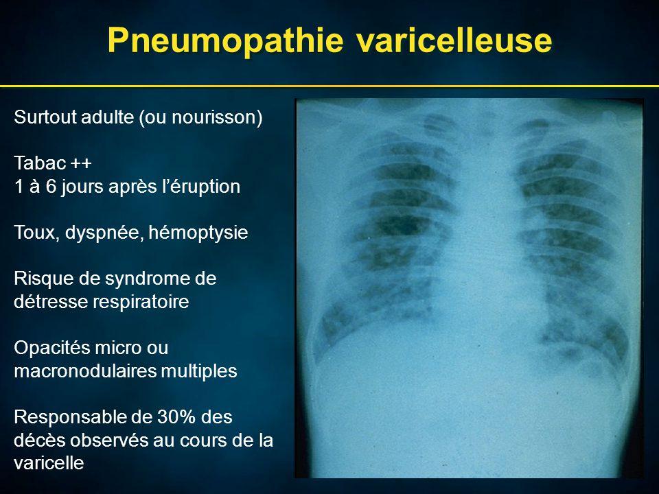 Pneumopathie varicelleuse Surtout adulte (ou nourisson) Tabac ++ 1 à 6 jours après l'éruption Toux, dyspnée, hémoptysie Risque de syndrome de détresse respiratoire Opacités micro ou macronodulaires multiples Responsable de 30% des décès observés au cours de la varicelle