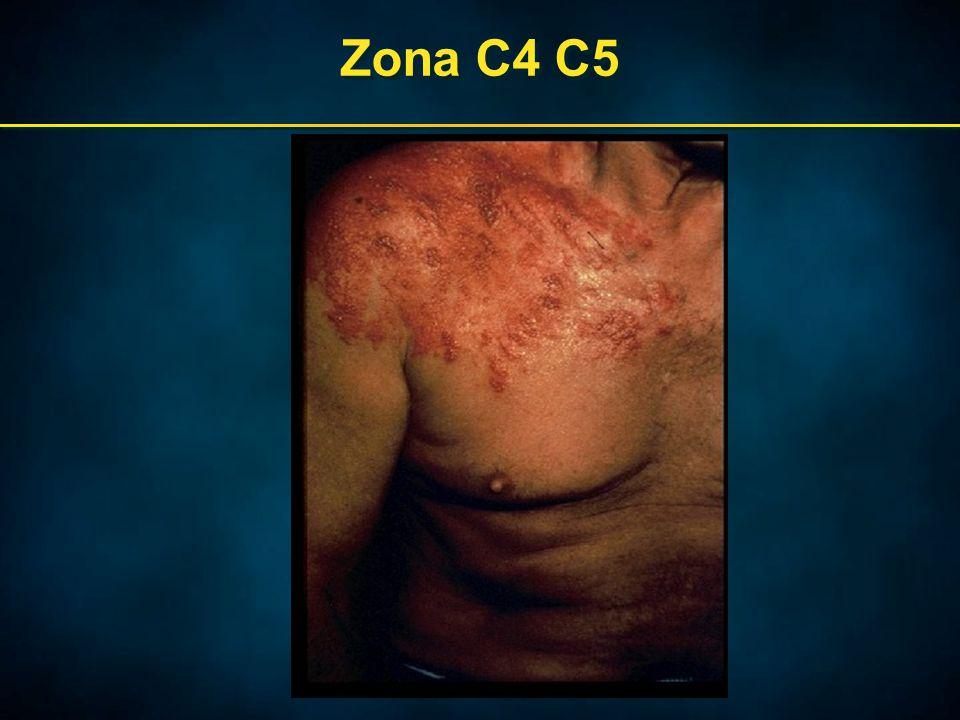 Zona C4 C5