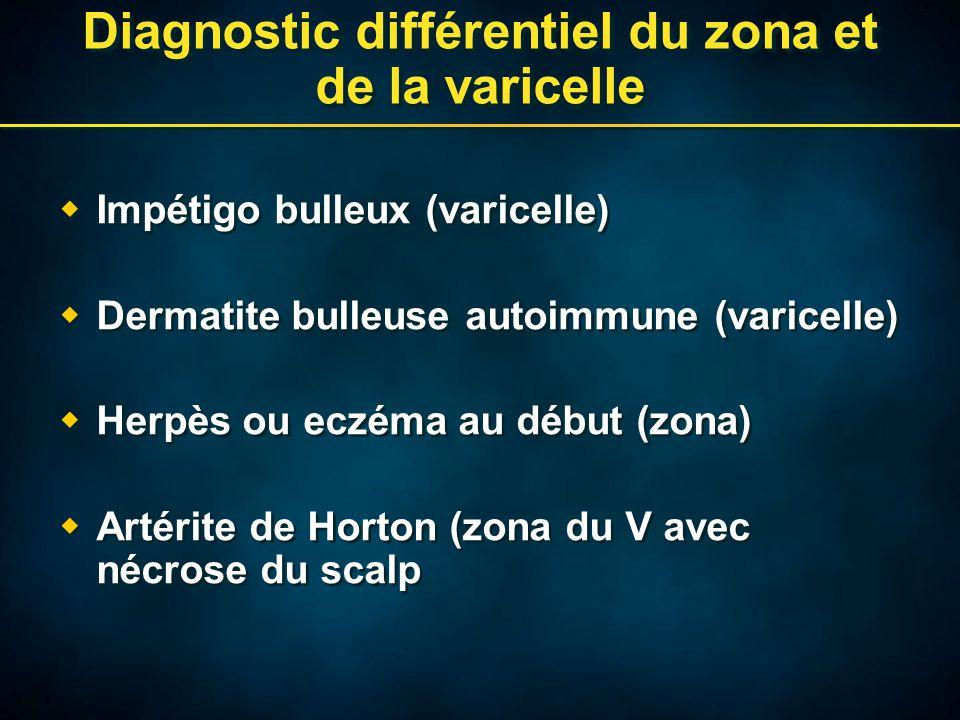 Diagnostic différentiel du zona et de la varicelle  Impétigo bulleux (varicelle)  Dermatite bulleuse autoimmune (varicelle)  Herpès ou eczéma au début (zona)  Artérite de Horton (zona du V avec nécrose du scalp  Impétigo bulleux (varicelle)  Dermatite bulleuse autoimmune (varicelle)  Herpès ou eczéma au début (zona)  Artérite de Horton (zona du V avec nécrose du scalp