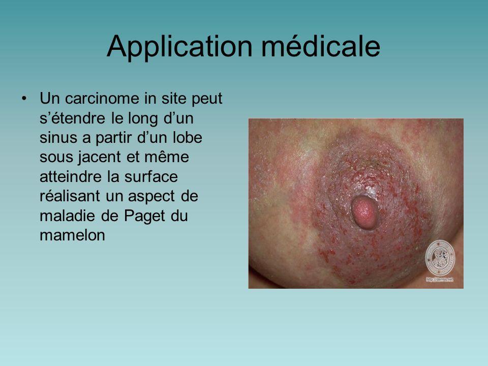 Application médicale Un carcinome in site peut s'étendre le long d'un sinus a partir d'un lobe sous jacent et même atteindre la surface réalisant un aspect de maladie de Paget du mamelon