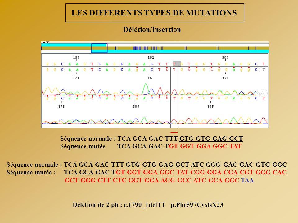 Délétion de 2 pb : c.1790_1delTT p.Phe597CysfsX23 Séquence normale : TCA GCA GAC TTT GTG GTG GAG GCT Séquence mutée TCA GCA GAC TGT GGT GGA GGC TAT Sé