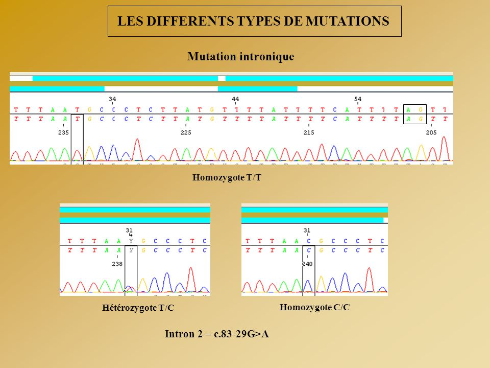 LES DIFFERENTS TYPES DE MUTATIONS Mutation intronique Homozygote T/T Hétérozygote T/C Homozygote C/C Intron 2 – c.83-29G>A