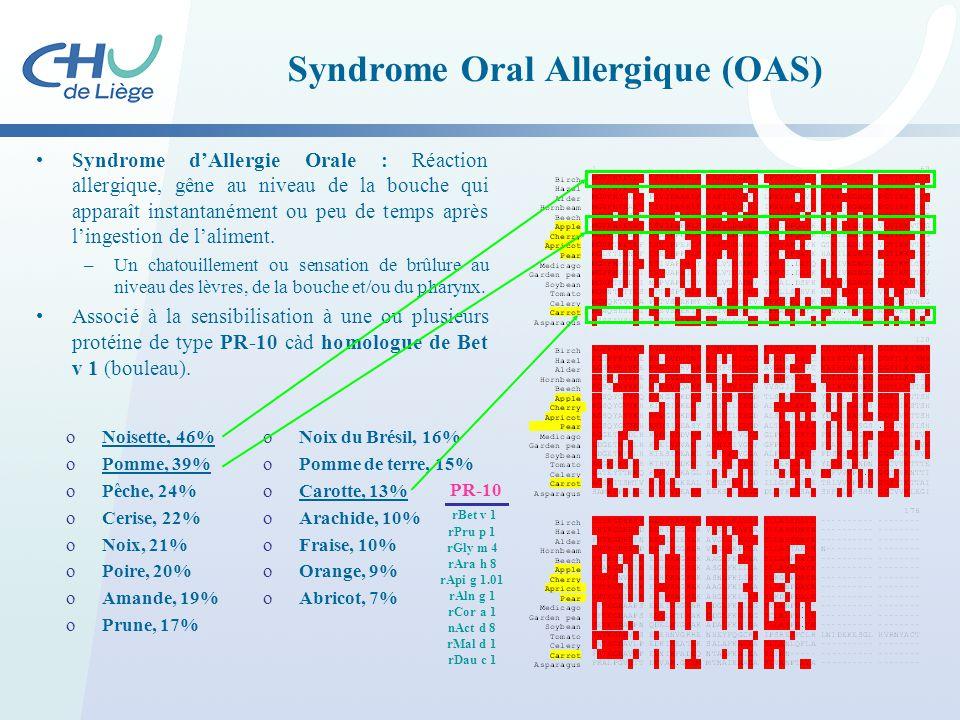 Syndrome Oral Allergique (OAS) Syndrome d'Allergie Orale : Réaction allergique, gêne au niveau de la bouche qui apparaît instantanément ou peu de temp