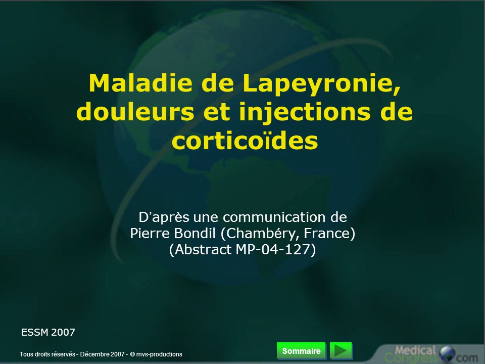 Tous droits réservés - Décembre 2007 - © mvs-productions Maladie de Lapeyronie, douleurs et injections de cortico ï des D ' apr è s une communication de Pierre Bondil (Chamb é ry, France) (Abstract MP-04-127) ESSM 2007 Sommaire
