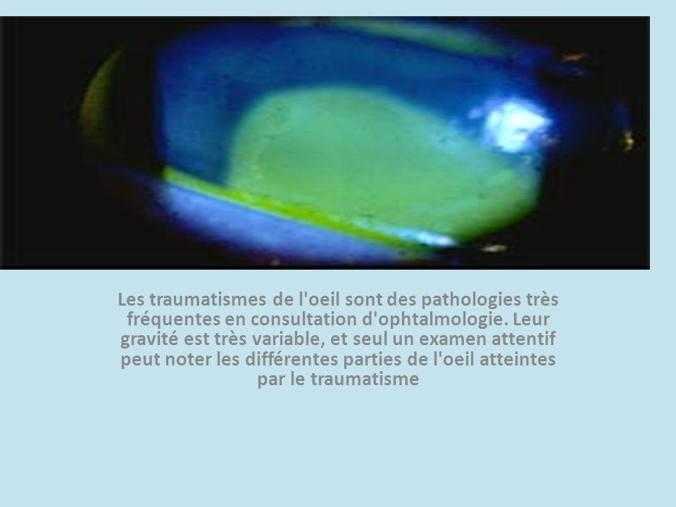 Les traumatismes de l'oeil sont des pathologies très fréquentes en consultation d'ophtalmologie. Leur gravité est très variable, et seul un examen att