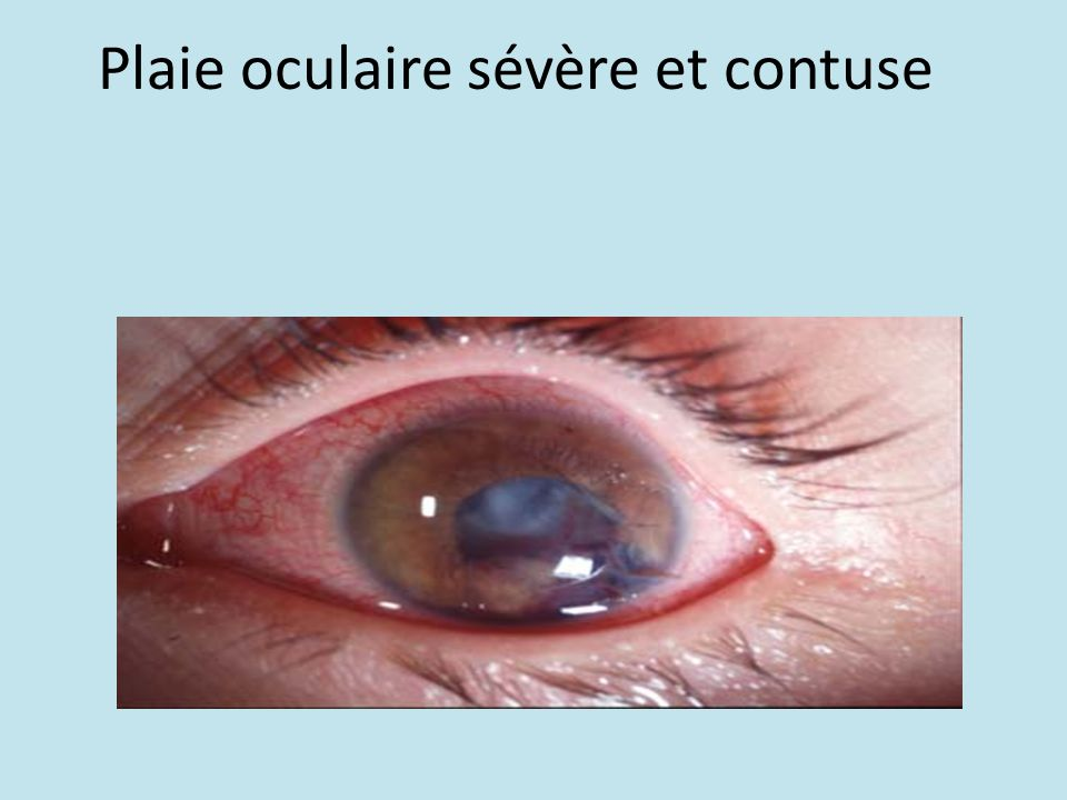 Plaie oculaire sévère et contuse