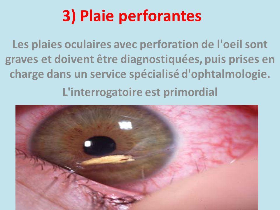 3) Plaie perforantes Les plaies oculaires avec perforation de l'oeil sont graves et doivent être diagnostiquées, puis prises en charge dans un service