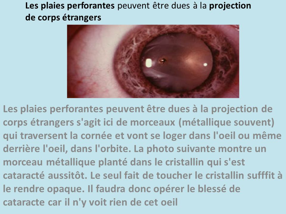 Les plaies perforantes peuvent être dues à la projection de corps étrangers Les plaies perforantes peuvent être dues à la projection de corps étranger