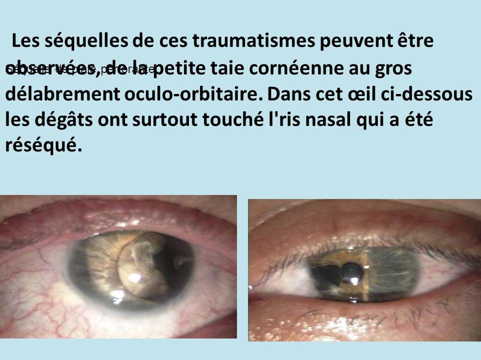Les séquelles de ces traumatismes peuvent être observées, de la petite taie cornéenne au gros délabrement oculo-orbitaire. Dans cet œil ci-dessous les