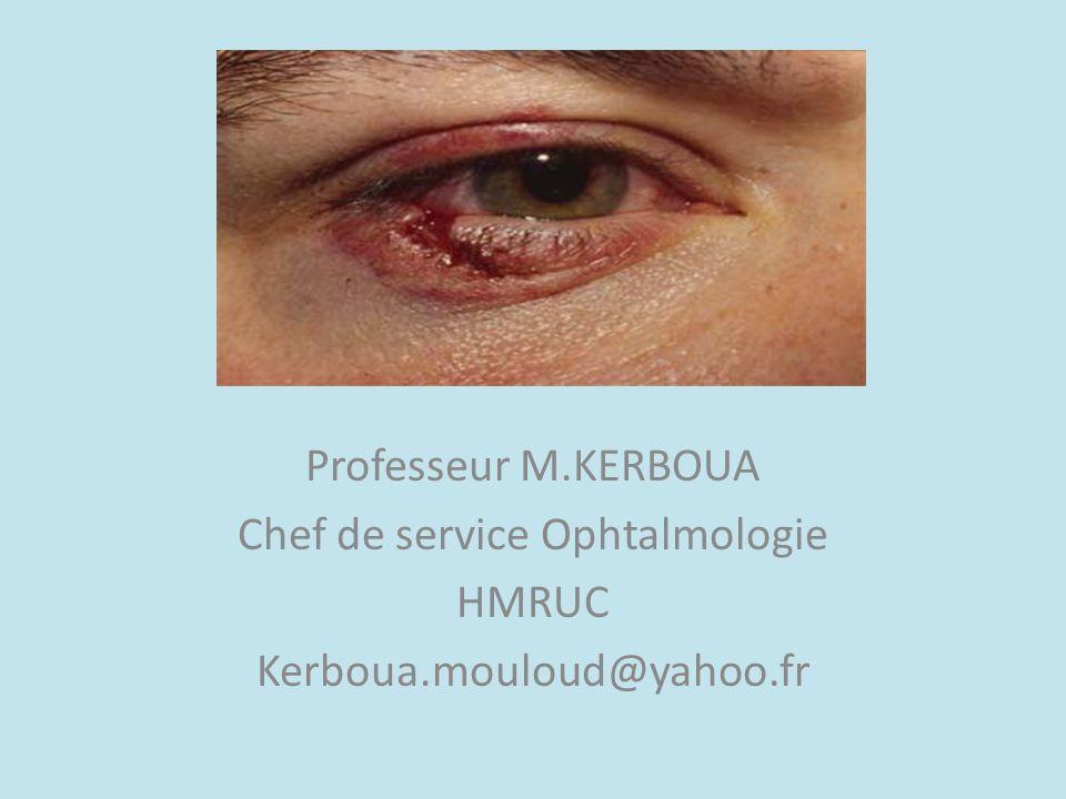 Professeur M.KERBOUA Chef de service Ophtalmologie HMRUC Kerboua.mouloud@yahoo.fr
