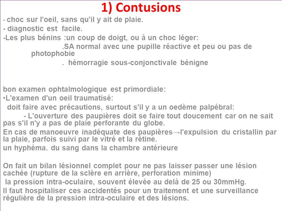 Hémorragie sous-conjonctivale jmm Niveau liquide: Hyphéma Contusion grave de l oeil