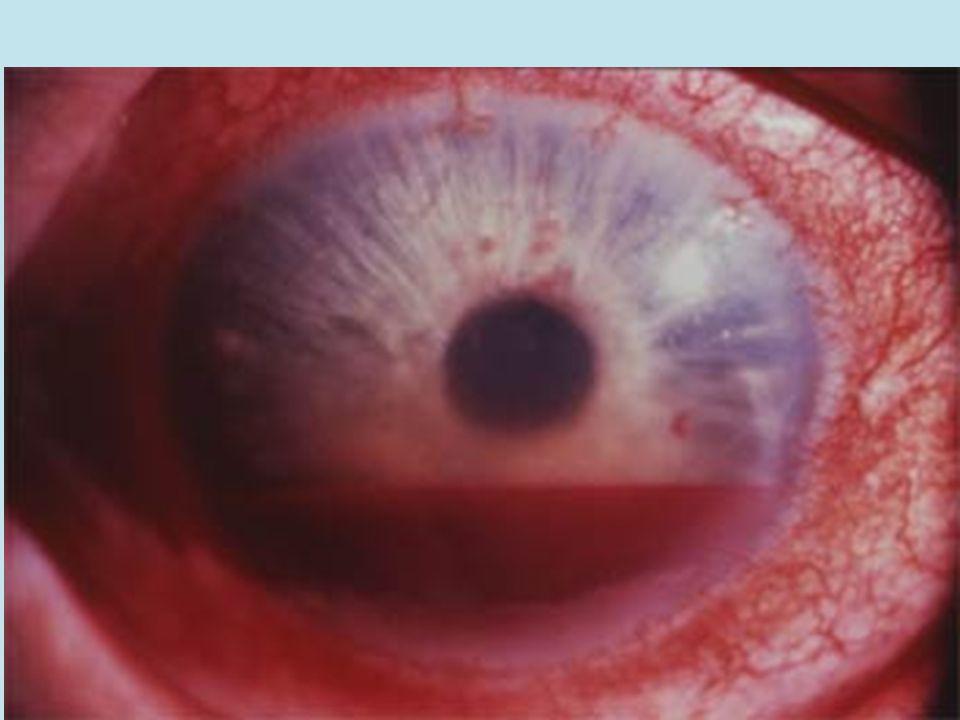 Hémorragie sous-conjonctivale jmm Niveau liquide: Hyphéma Contusion grave de l'oeil