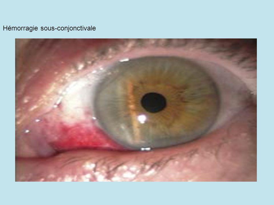 4) Plaie perforantes Corps étranger métallique planté dans la rétine Corps étrangter intra-oculaire gauche métallique Corps étranger métallique planté dans la rétine