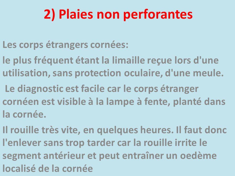 2) Plaies non perforantes Les corps étrangers cornées: le plus fréquent étant la limaille reçue lors d'une utilisation, sans protection oculaire, d'un
