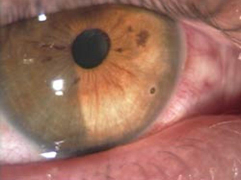 Les traumatismes de l'oeil sont des pathologies très fréquente Grain de meule cornéen (en bas à droites en consultation d'ophtalmologie. Leur gravité