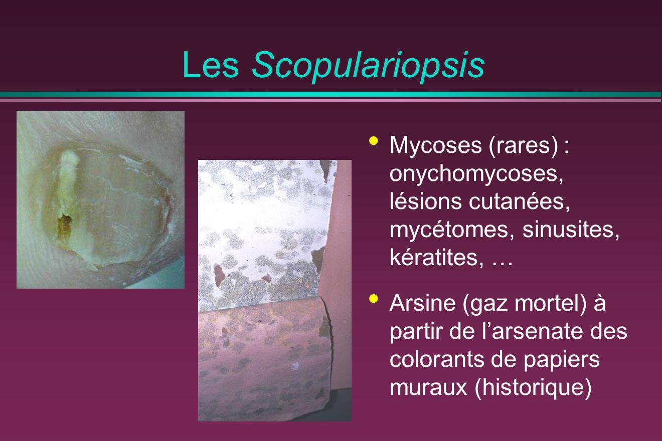 Les Scopulariopsis Mycoses (rares) : onychomycoses, lésions cutanées, mycétomes, sinusites, kératites, … Arsine (gaz mortel) à partir de l'arsenate de
