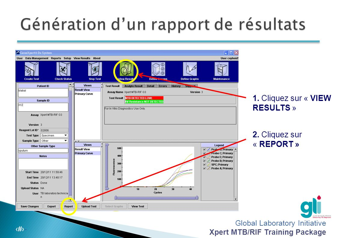 Global Laboratory Initiative Xpert MTB/RIF Training Package -‹#›- 1. Cliquez sur « VIEW RESULTS » 2. Cliquez sur « REPORT »