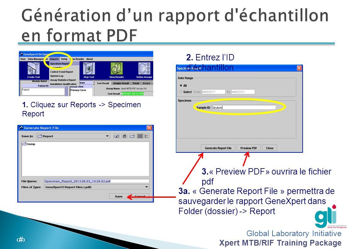 Global Laboratory Initiative Xpert MTB/RIF Training Package -‹#›- 1. Cliquez sur Reports -> Specimen Report 3a. « Generate Report File » permettra de