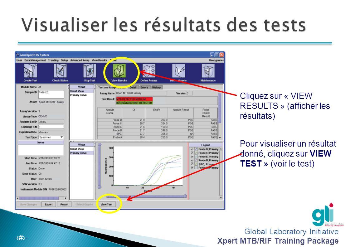 Global Laboratory Initiative Xpert MTB/RIF Training Package -‹#›- Cliquez sur « VIEW RESULTS » (afficher les résultats) Pour visualiser un résultat do