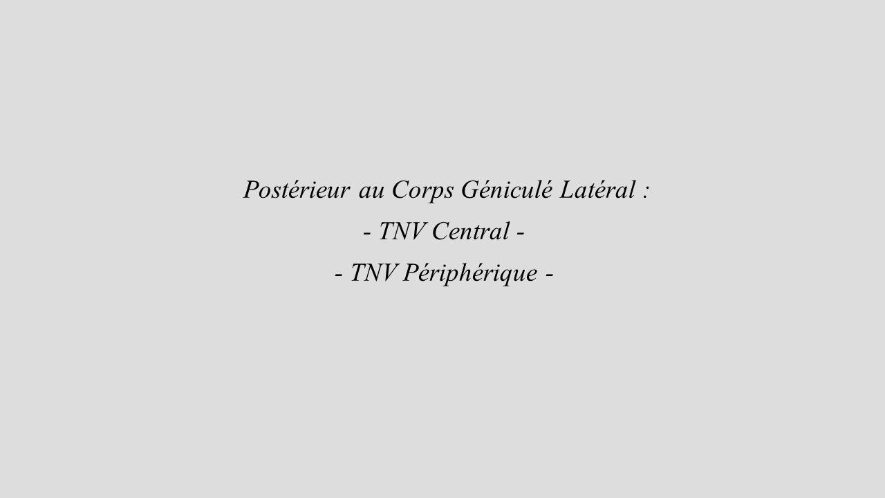 Postérieur au Corps Géniculé Latéral : - TNV Central - - TNV Périphérique -