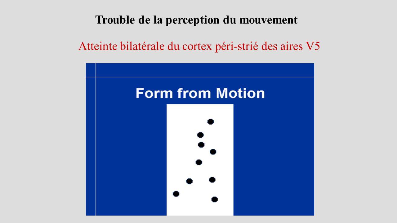 Trouble de la perception du mouvement Atteinte bilatérale du cortex péri-strié des aires V5