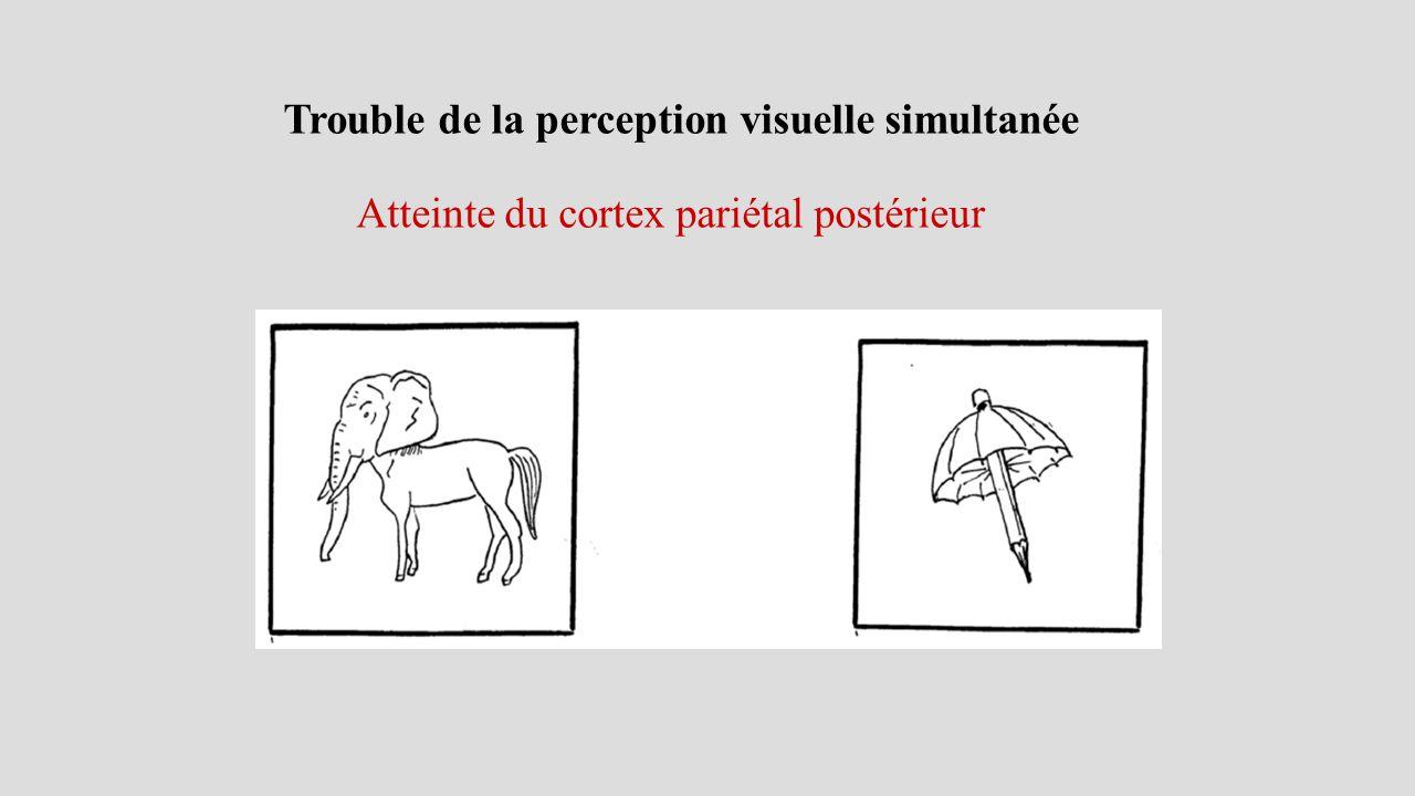 Trouble de la perception visuelle simultanée Atteinte du cortex pariétal postérieur