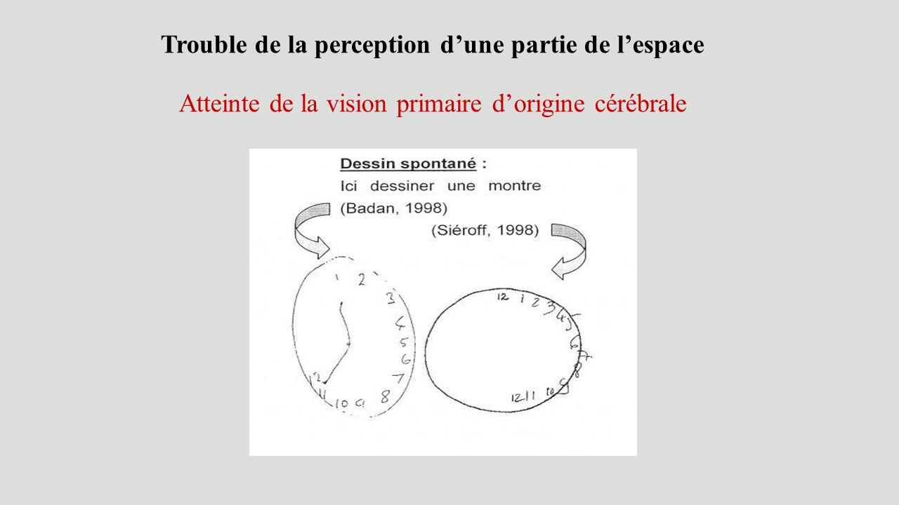 Trouble de la perception d'une partie de l'espace Atteinte de la vision primaire d'origine cérébrale