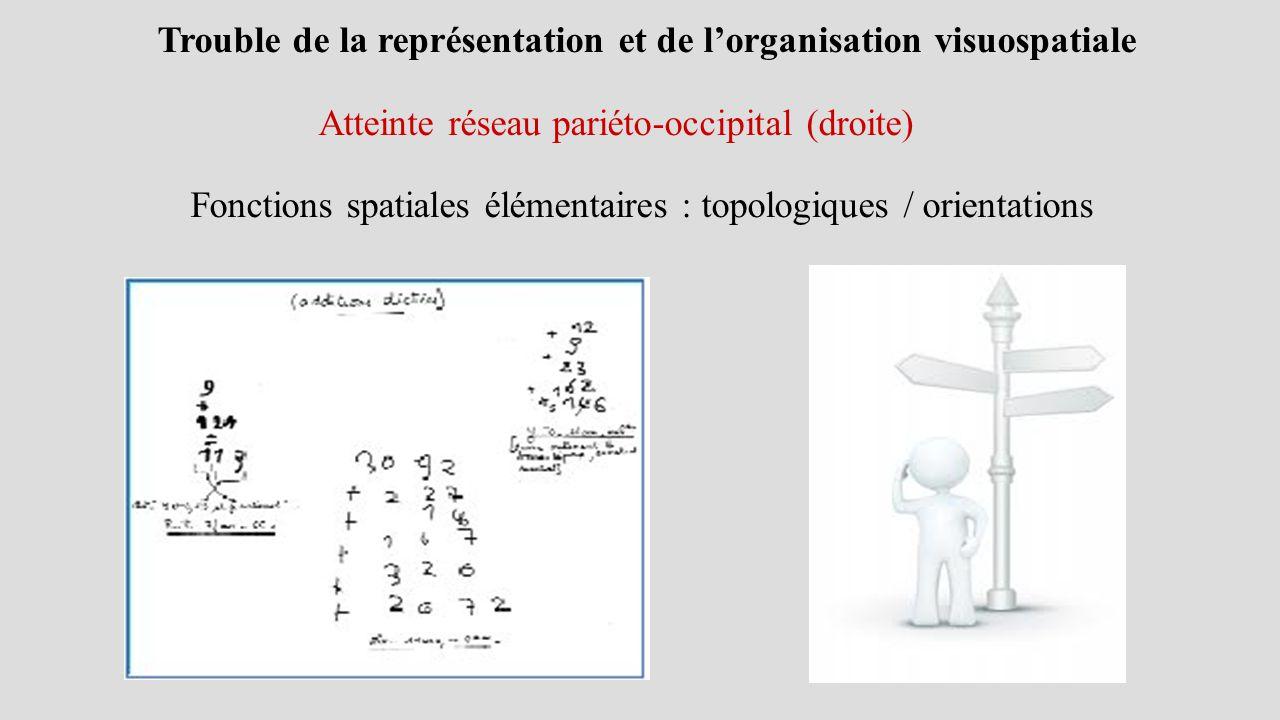 Trouble de la représentation et de l'organisation visuospatiale Atteinte réseau pariéto-occipital (droite) Fonctions spatiales élémentaires : topologiques / orientations
