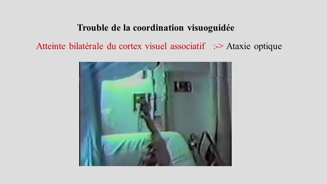 Trouble de la coordination visuoguidée Atteinte bilatérale du cortex visuel associatif :-> Ataxie optique