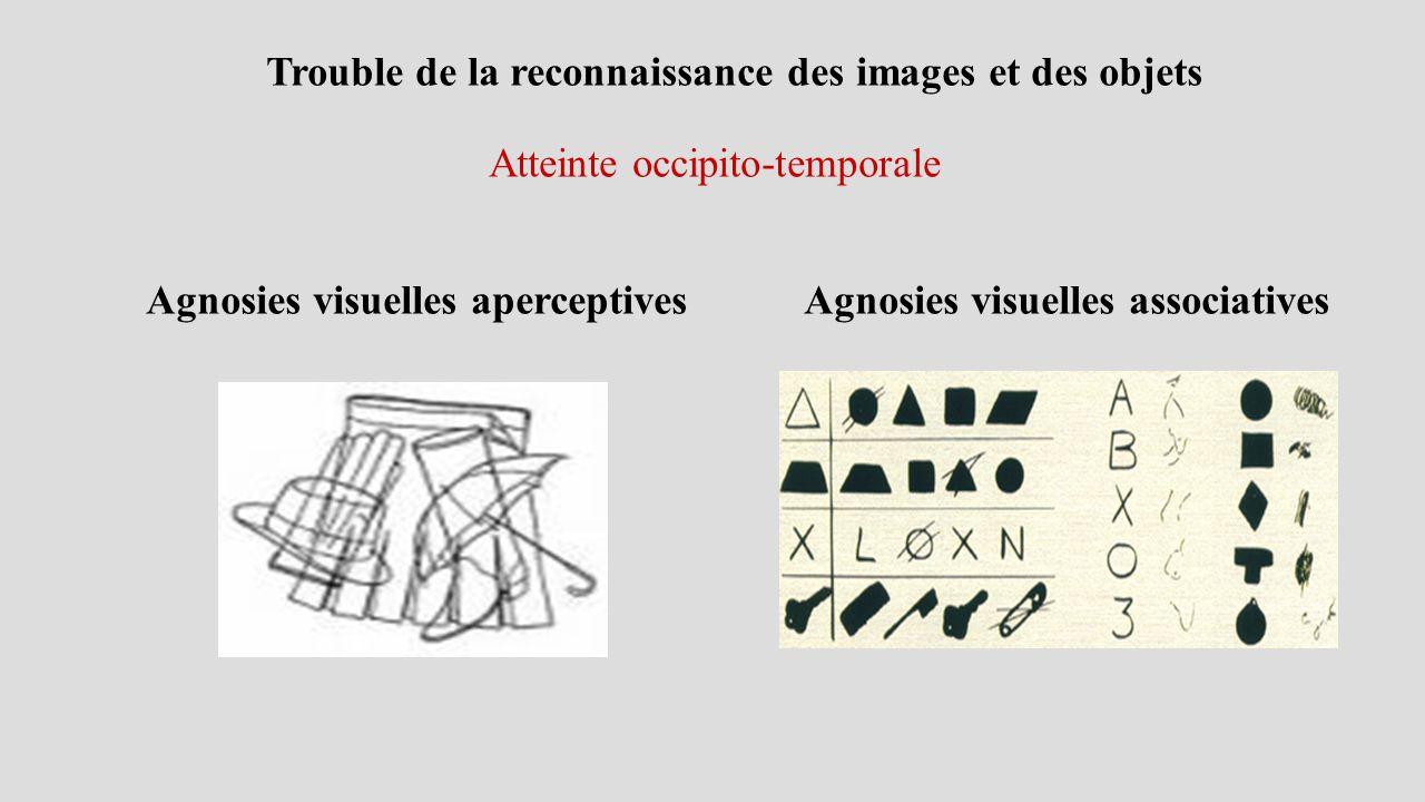Trouble de la reconnaissance des images et des objets Atteinte occipito-temporale Agnosies visuelles aperceptives Agnosies visuelles associatives
