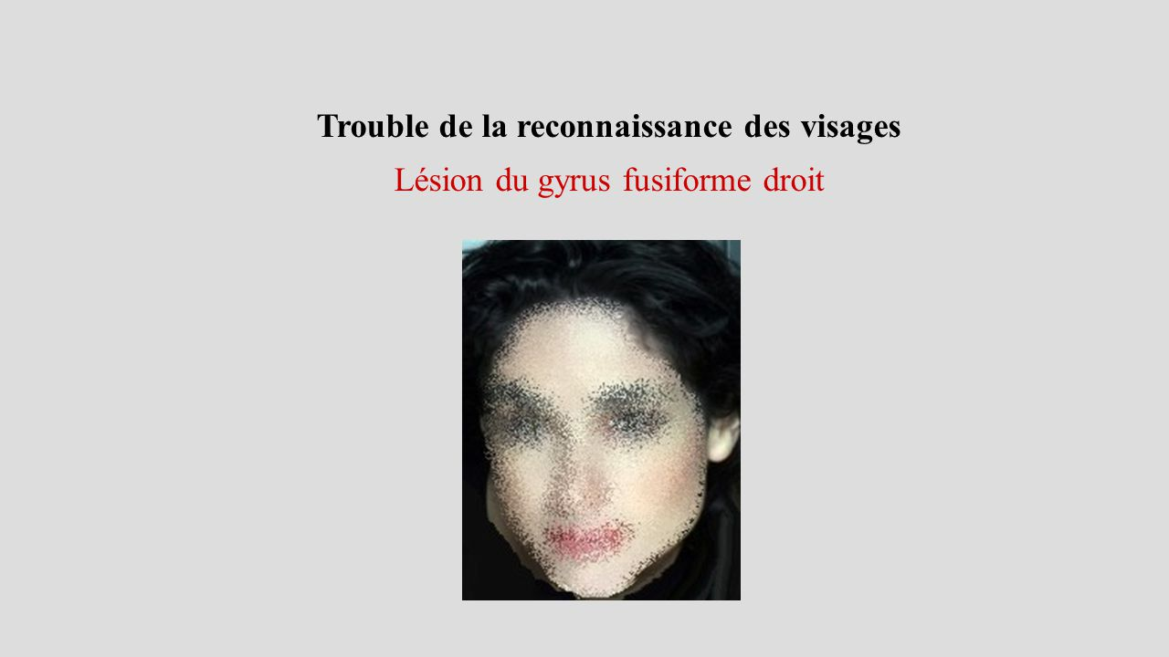Trouble de la reconnaissance des visages Lésion du gyrus fusiforme droit