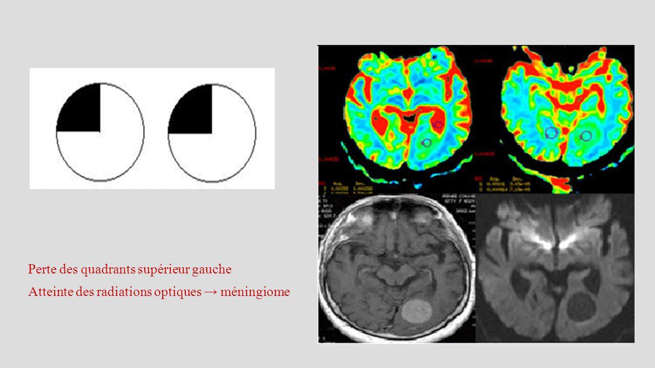 Perte des quadrants supérieur gauche Atteinte des radiations optiques → méningiome
