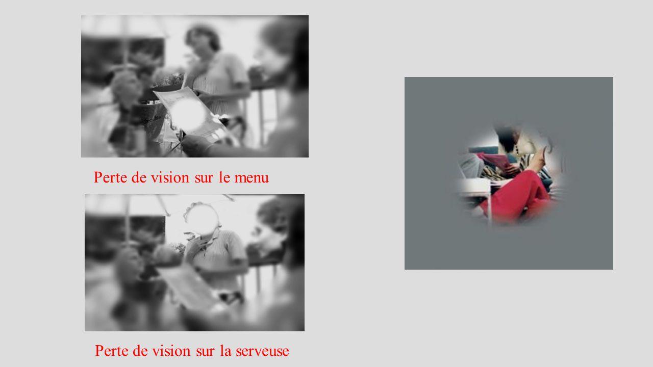 Perte de vision sur le menu Perte de vision sur la serveuse