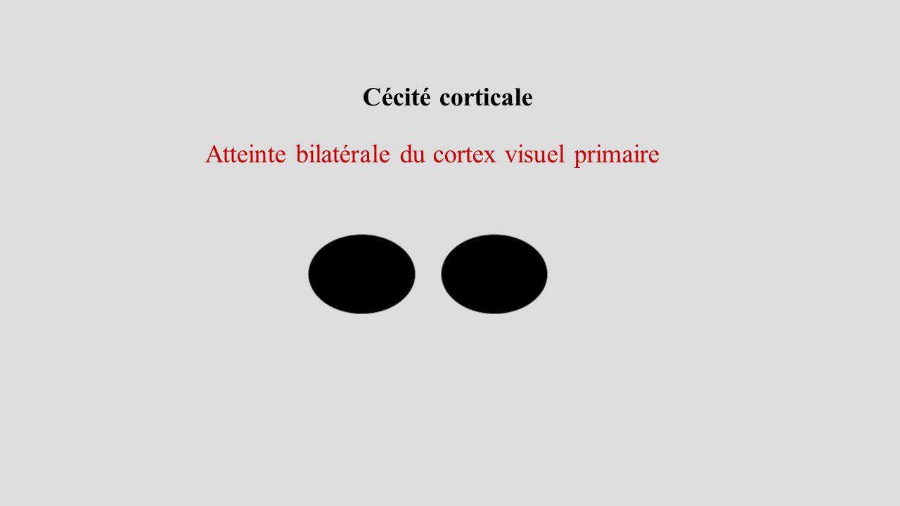 Cécité corticale Atteinte bilatérale du cortex visuel primaire