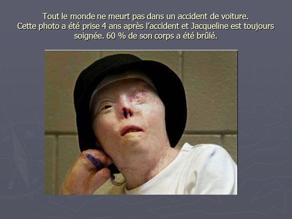 Tout le monde ne meurt pas dans un accident de voiture. Cette photo a été prise 4 ans après l'accident et Jacqueline est toujours soignée. 60 % de son