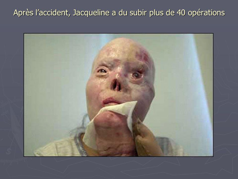 Après l'accident, Jacqueline a du subir plus de 40 opérations Après l'accident, Jacqueline a du subir plus de 40 opérations