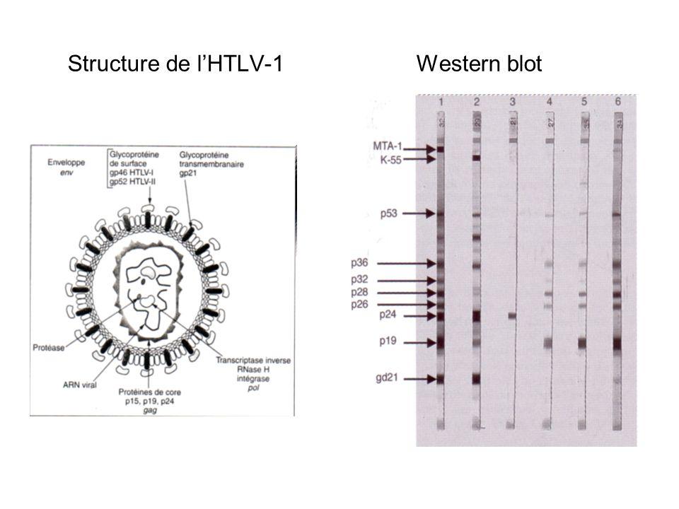 Structure de l'HTLV-1 Western blot