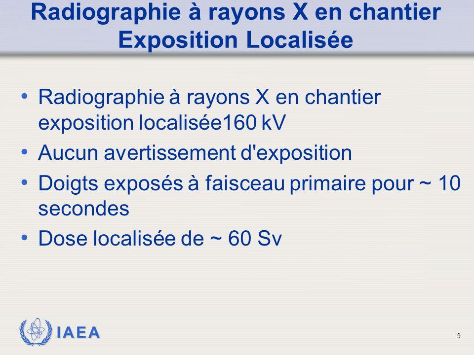 IAEA Radiographie à rayons X en chantier Exposition Localisée Radiographie à rayons X en chantier exposition localisée160 kV Aucun avertissement d'exp