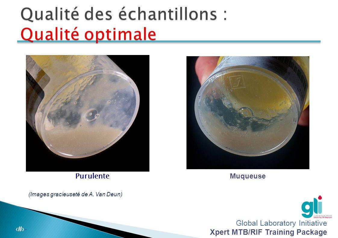 Global Laboratory Initiative Xpert MTB/RIF Training Package -‹#›-  Le meilleur spécimen provient des poumons.  La salive ou les sécrétions nasales s