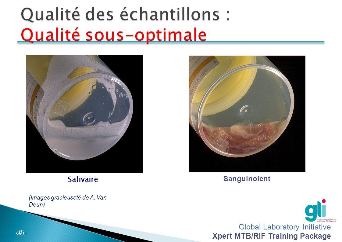 Global Laboratory Initiative Xpert MTB/RIF Training Package -‹#›- Purulente Muqueuse (Images gracieuseté de A. Van Deun)