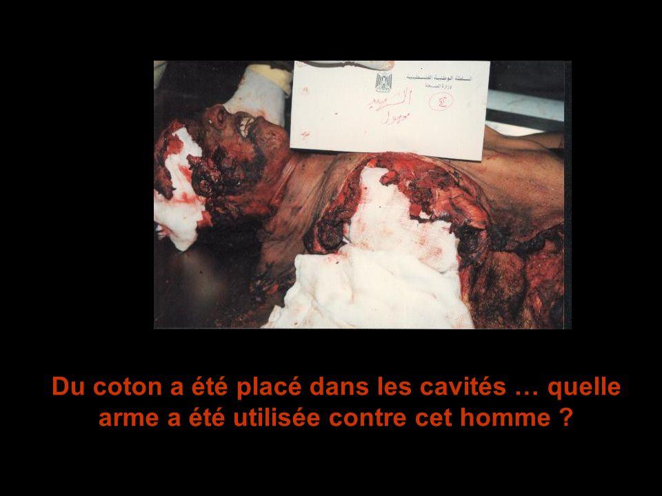 Du coton a été placé dans les cavités … quelle arme a été utilisée contre cet homme