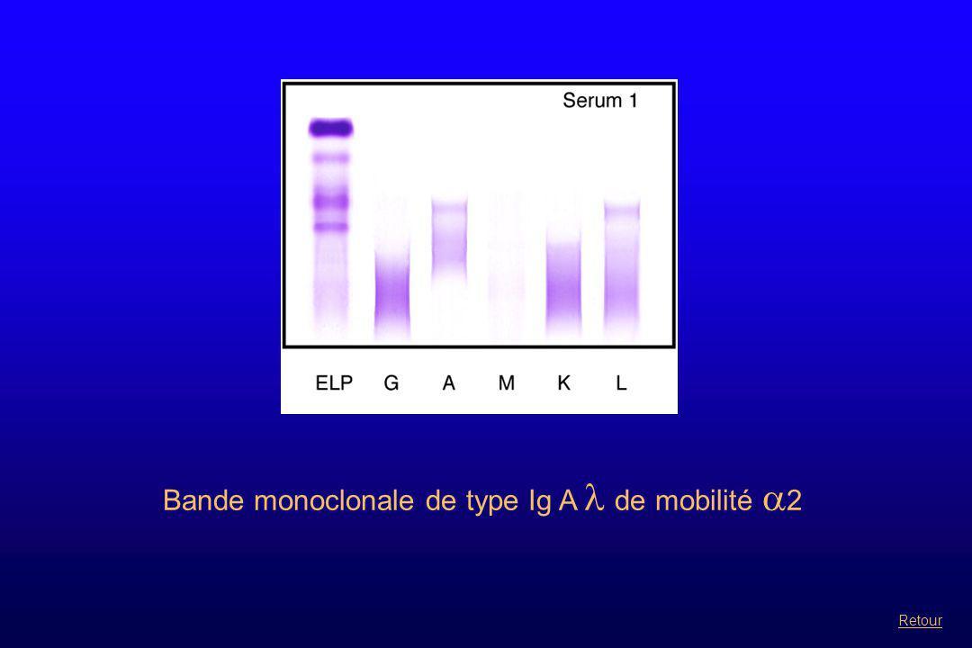Bande monoclonale de type Ig A  de mobilité  2 Retour